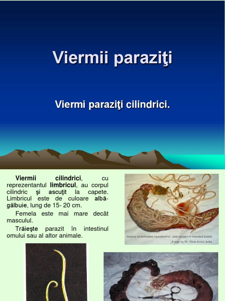 unde viermii trăiesc la oameni controlul parazitului