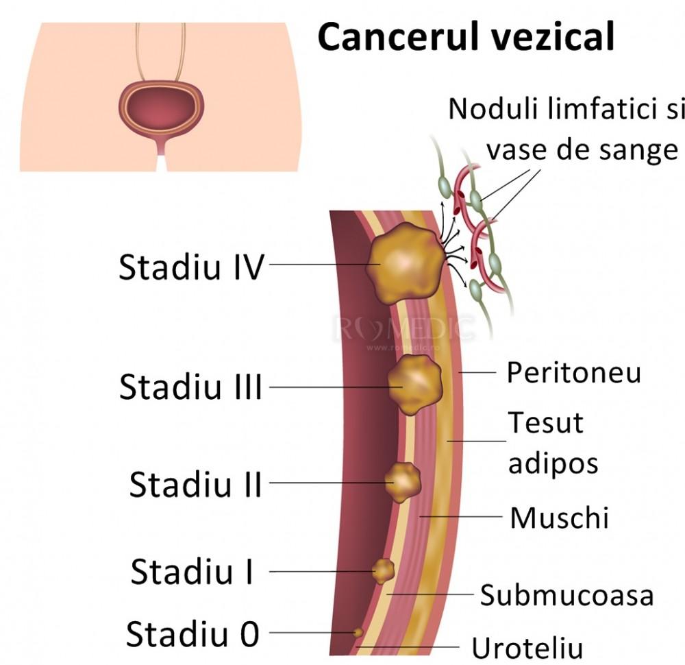 preparate sub microscop de helmint remedii naturale de detoxifiere a colonului