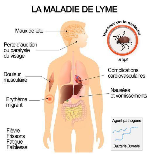 Cancer peritoneal ventre gonfle, Varicele tradiționale medicament od - Virus hpv gorge