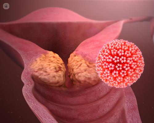 the human papillomavirus hpv causes