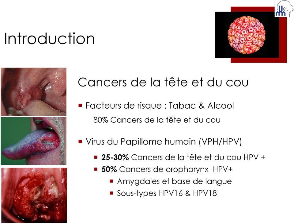 Hpv cancer amygdale. Cancer la amigdale - topvacanta.ro, Papillomavirus amygdale