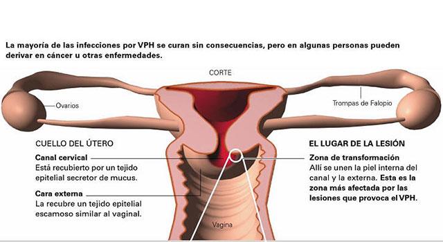 virus del papiloma en el embarazo