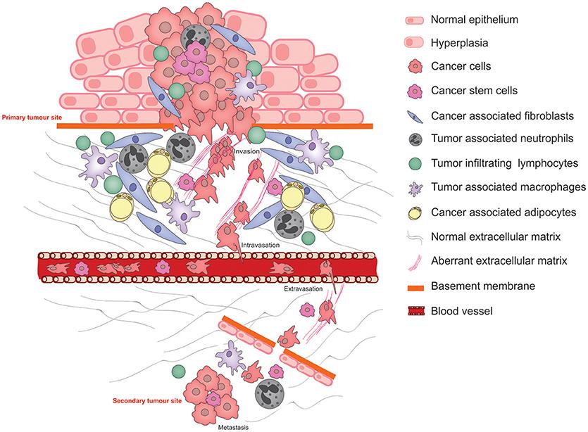 metastazare - Traducere în engleză - exemple în română | Reverso Context, Benign cancer stem cells