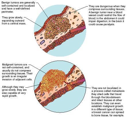 Benign cancer types -