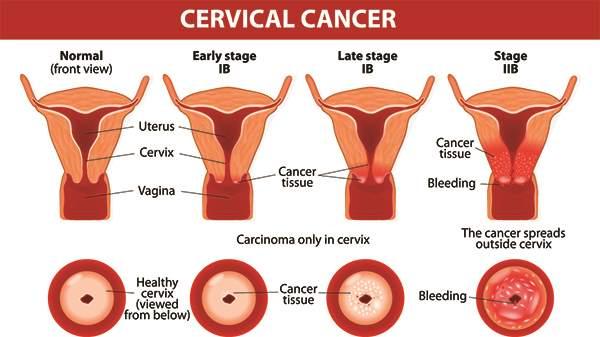cancerul de prostata - Traduzione in italiano – Dizionario Linguee