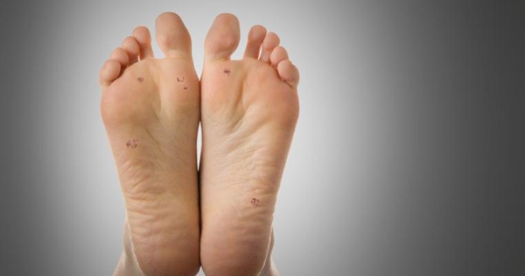 tratamentul negilor în Tula tablete din viermi obișnuiți