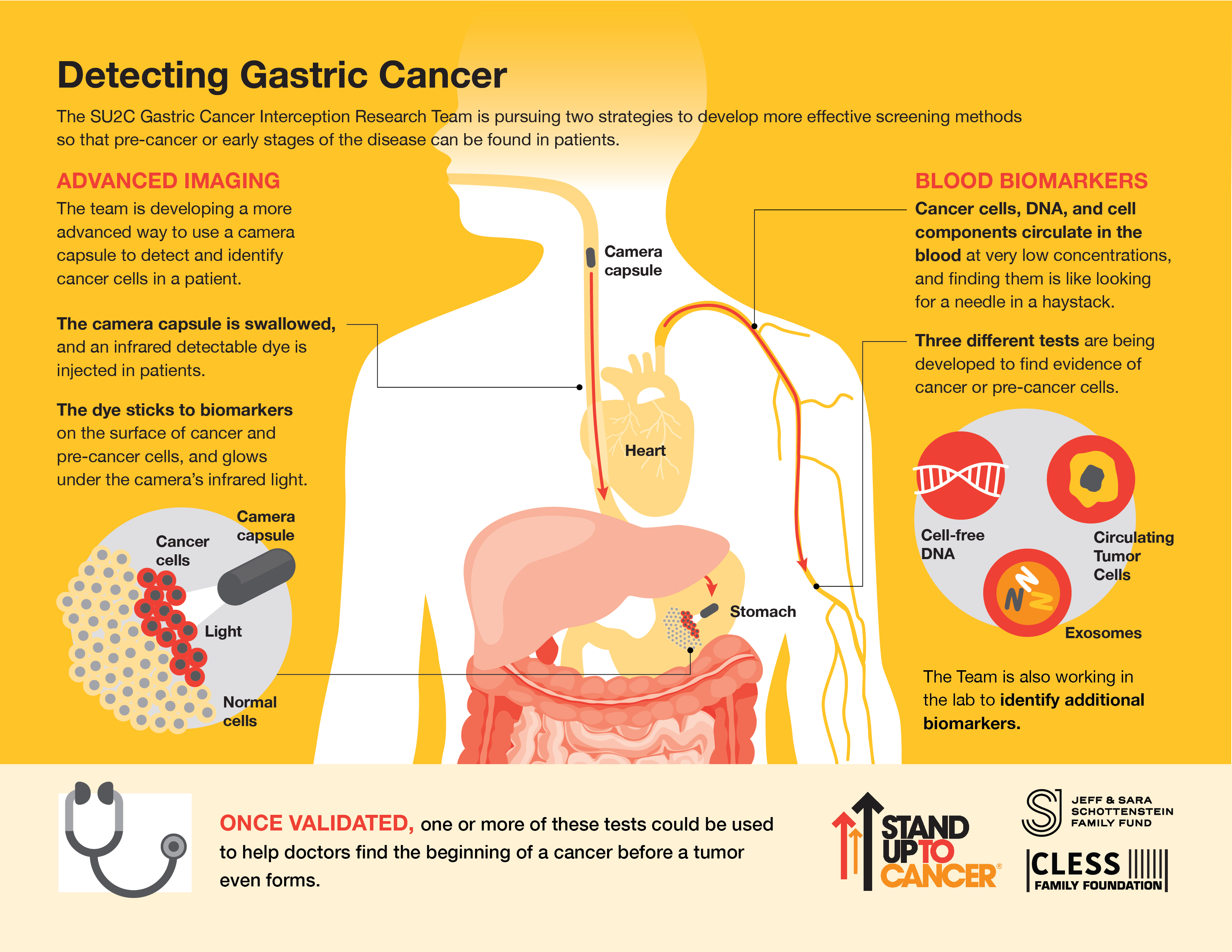 Ce trebuie sa stim despre cancerul gastric