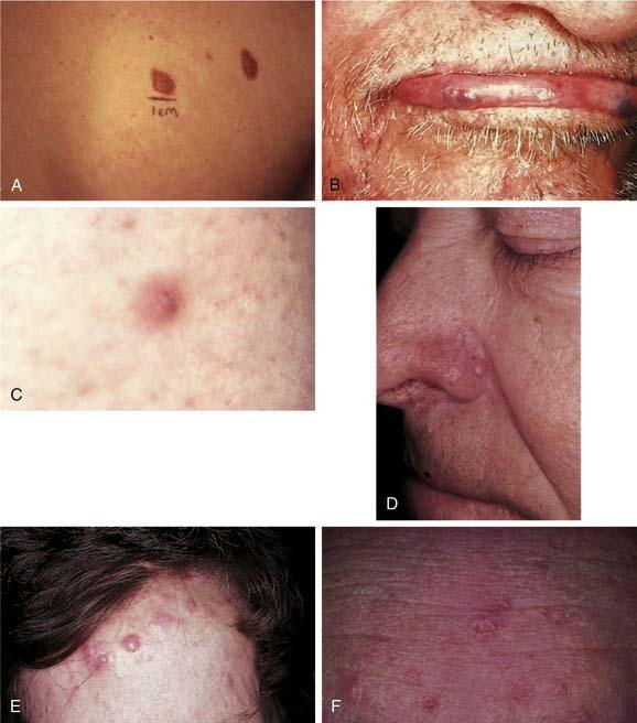 condilom traheal human papillomavirus vaccine and autoimmune diseases