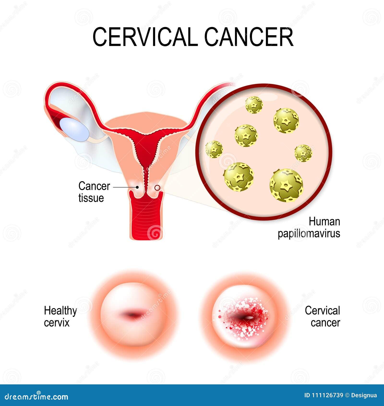 human papilloma tumor cancerul de rect doare