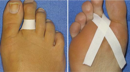 Tratamentul calusului între degete
