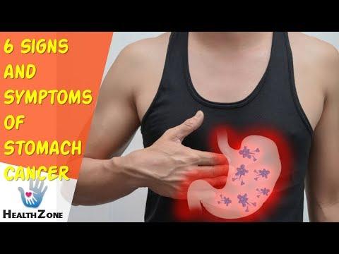 cancer abdominal la copii