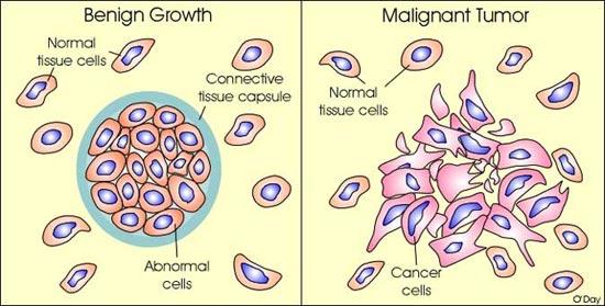 cancer cells benign malignant împotriva lămâilor