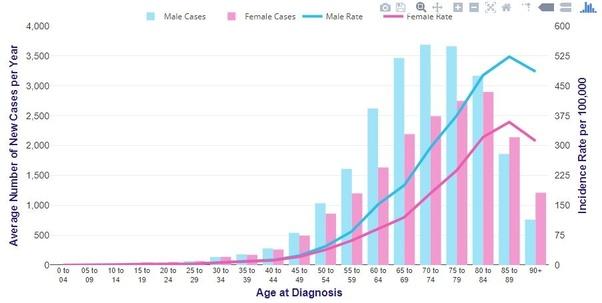 cancer colon age