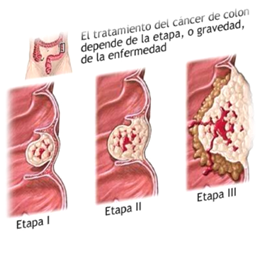 cancer de colon monografia