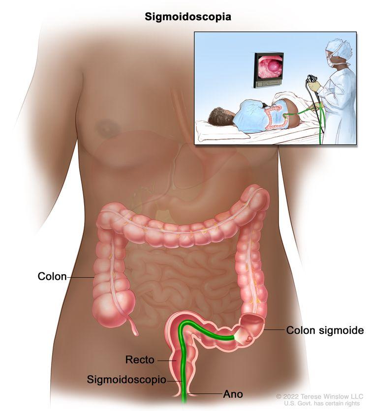 Cancer de colon : Simptome, cauzele aparitiei, investigatii, tratament