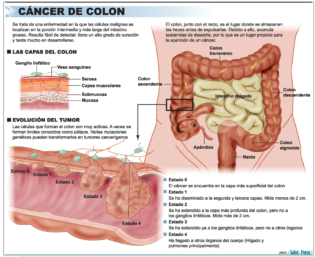 cancer de colon que es ovarian cancer vs fibroids