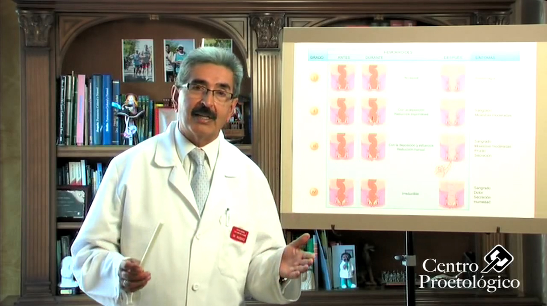 Șosete anti varicoasă tibiei Cancer de colon hemorroides