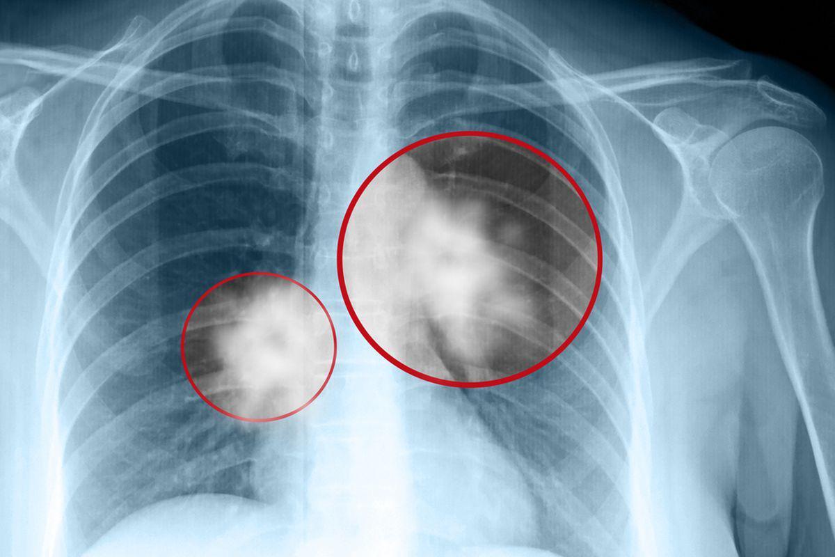 cancer de plamani manifestari hpv impfung langzeitschaden