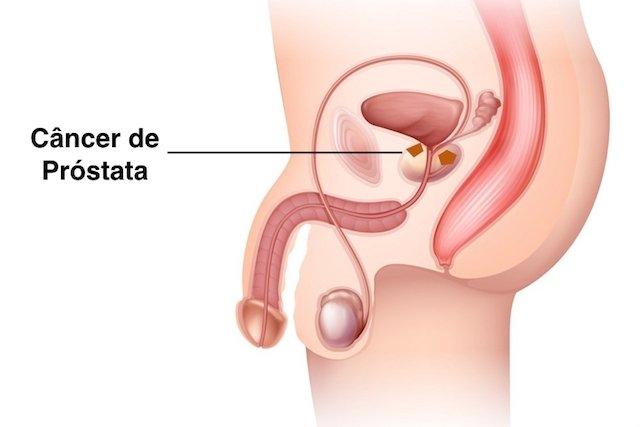cancer de prostata linguagem do corpo il papilloma virus e mortale