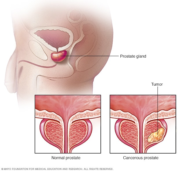 condiloame la timpul de tratament al femeilor boală largă streamer