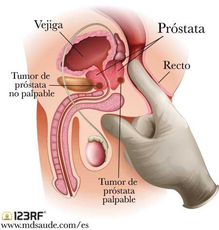 whiplash este o midie virus del papiloma labios genitales
