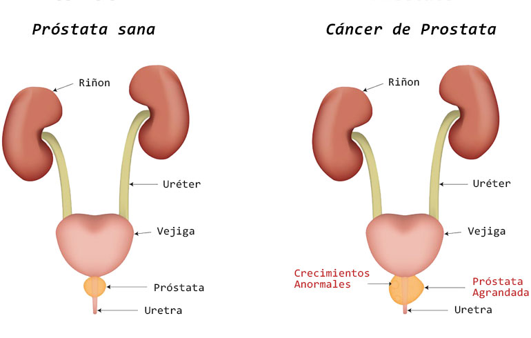 cancer de uretra