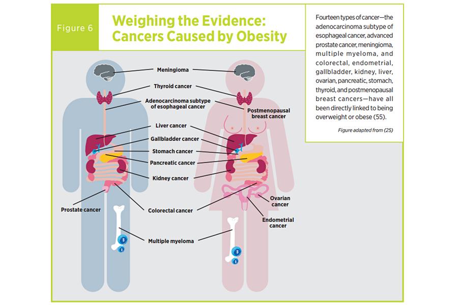 cancer laringian regim alimentar
