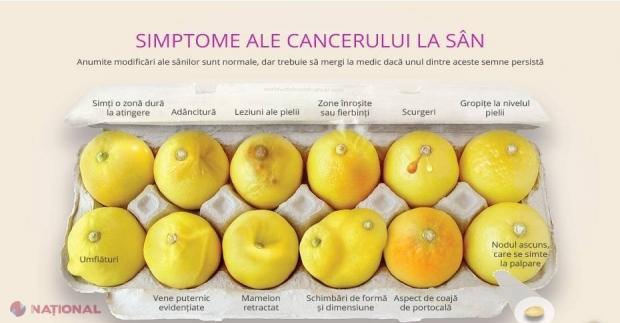 Simptomele cancerului de sân | Medlife
