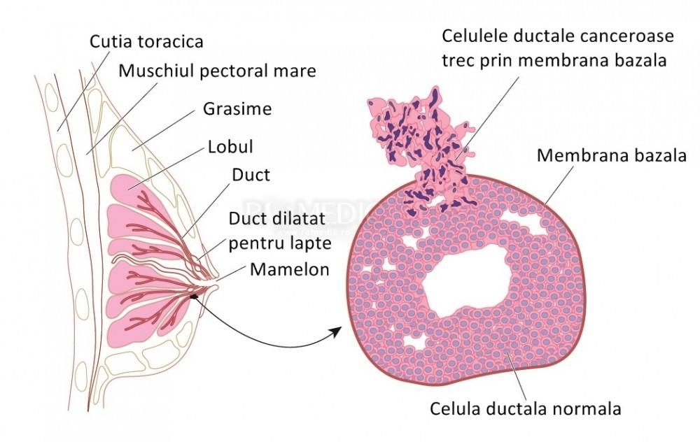 cancer mamar lobular invaziv