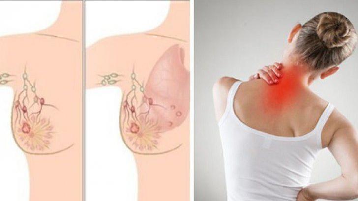 Care sunt primele simptome ale cancerului de sân
