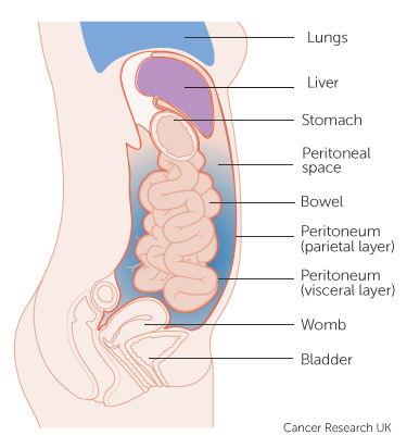cancer membrane abdominal