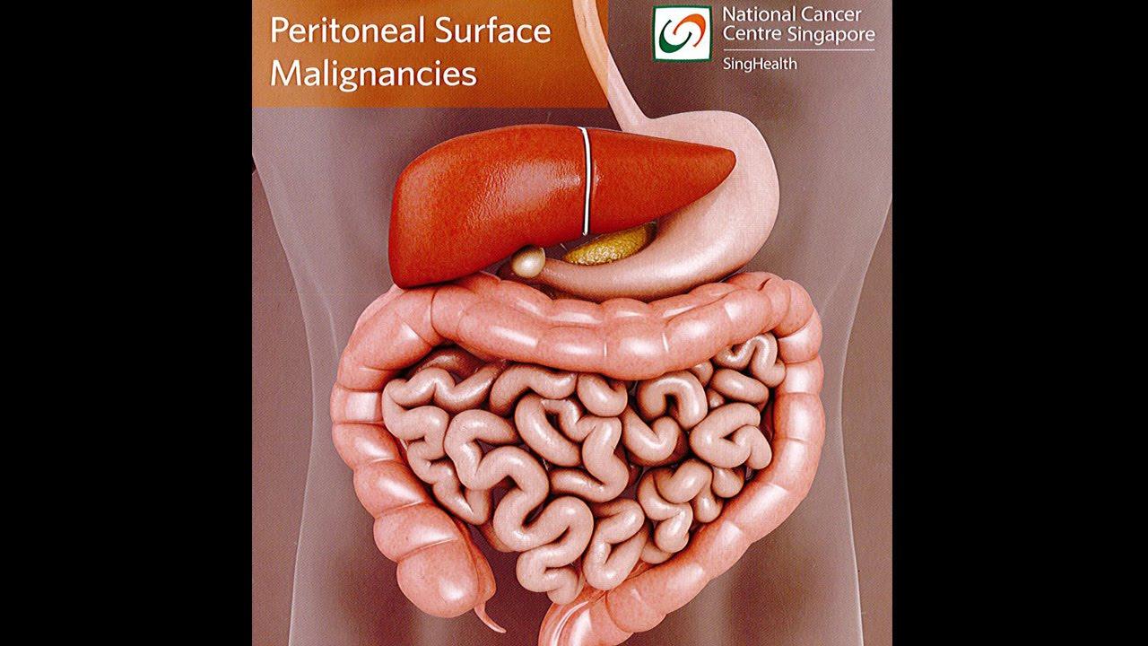cancer of peritoneal cum să îndepărtați negi și papiloame