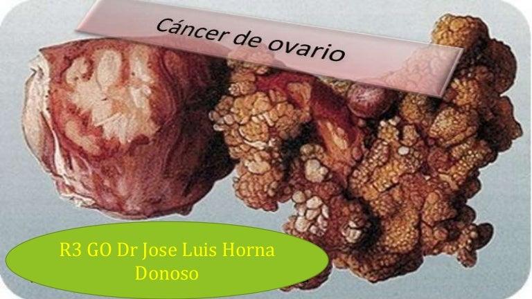 Testarea genetică la cancerul mamar și ovarian - Invitro Diagnostics