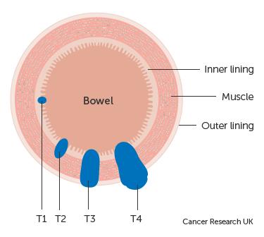 Diagnosticul imagistic al tumorilor colo-rectale | topvacanta.ro