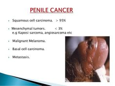 cancer sarcoma jambe vph en el ano como se detecta