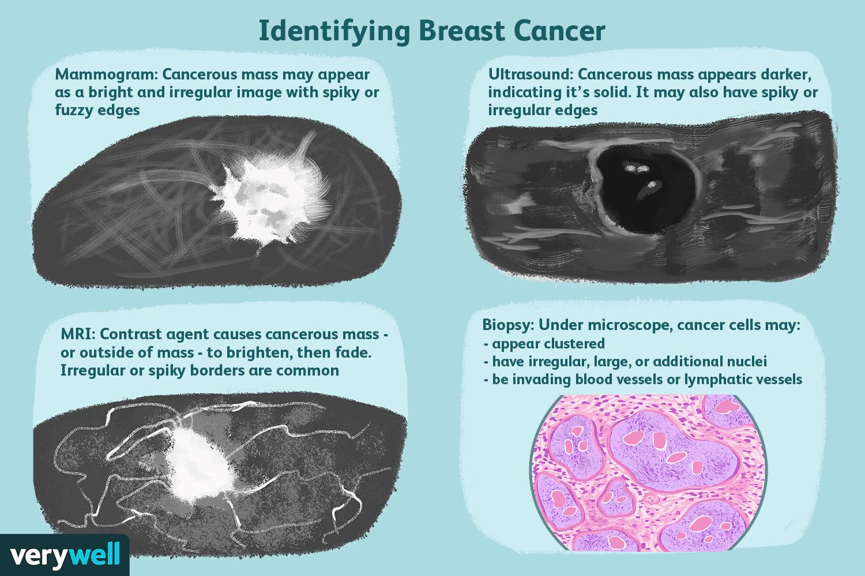 cancer vs benign tumor Hermafroditele sunt bullworm