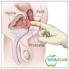 cancerul de prostata evolutie