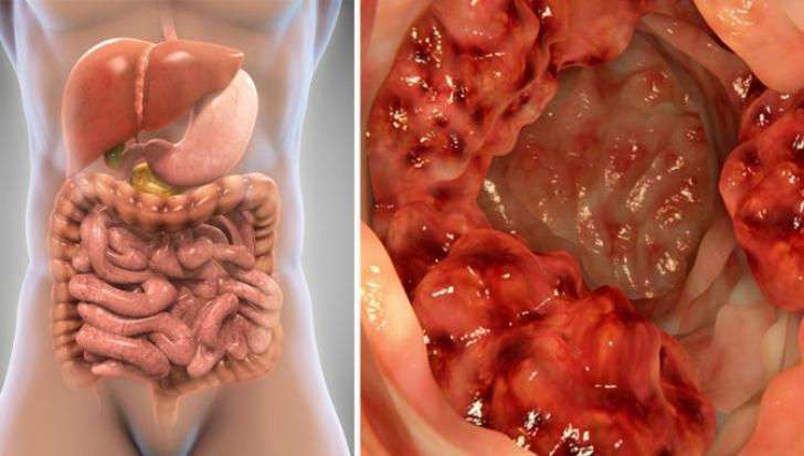 condiloame ale vaginului și colului uterin medicamente pt viermisori la copii