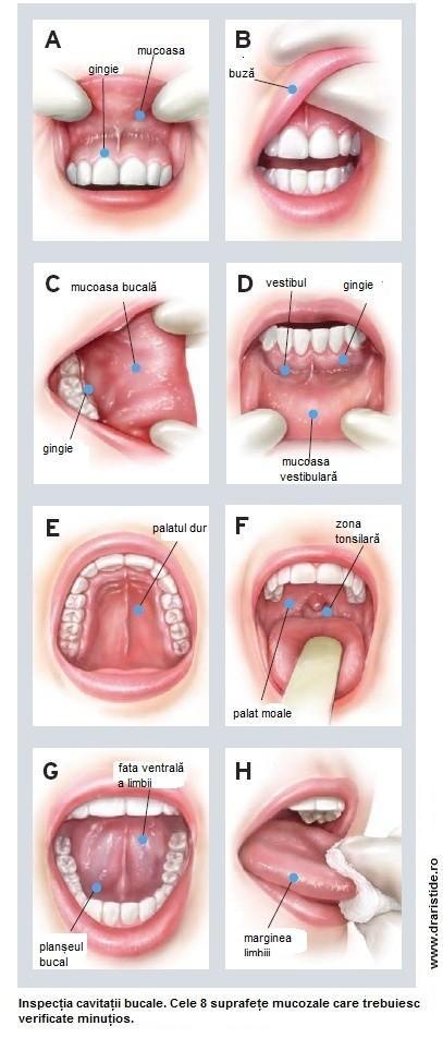 Cancer bucal (oral) - Tot ce trebuie să ştii | Cancer