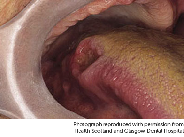 icd 10 papilloma of tongue