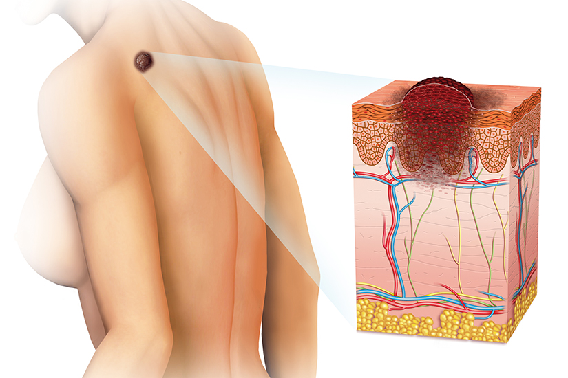 Cancer de piele. Cum arată și care sunt cele mai întâlnite tipuri?