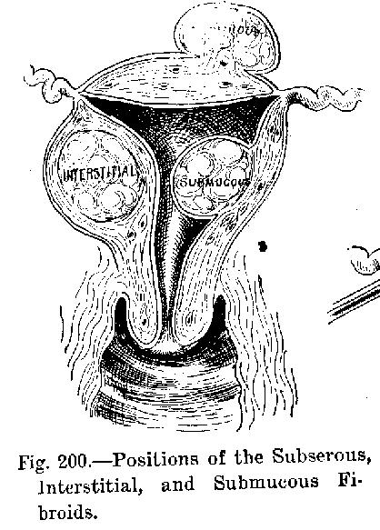 Negii genitale la femei