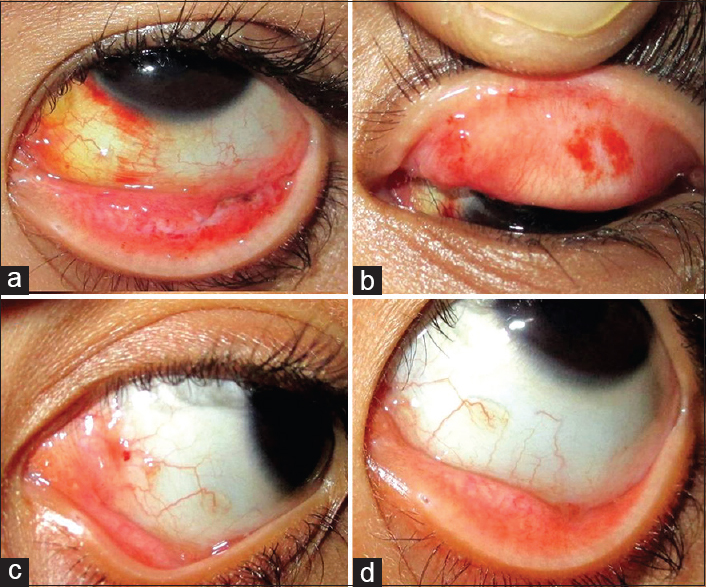 Conjunctival papilloma cryotherapy