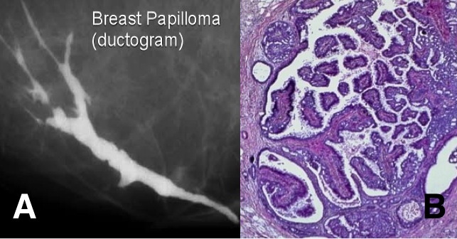 Intraductal papilloma with focal atypia. Papilloma with focal atypia