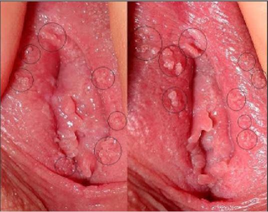 condiloame vaginale