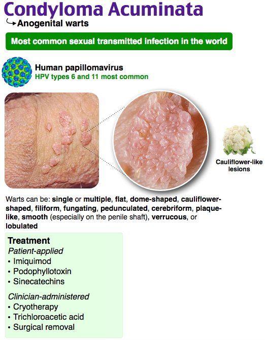 Sfatul Farmacistului: HPV cu condiloame genitale