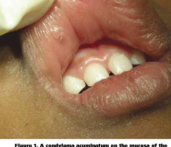 ciclul de dezvoltare al nematodelor tratamentul condilomului om