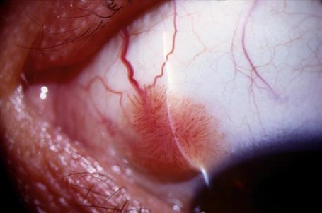 conjunctiva squamous papilloma îndepărtarea electrocoagulării verucilor genitale în locuri intime