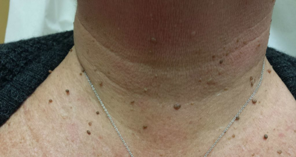 Îndepărtarea papilomelor pe gât Preț