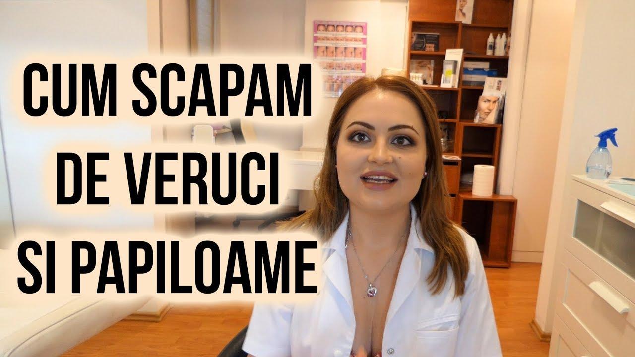 Papiloame si tumorete | Dr. Viviana Iordache